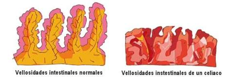 vellosidades celico